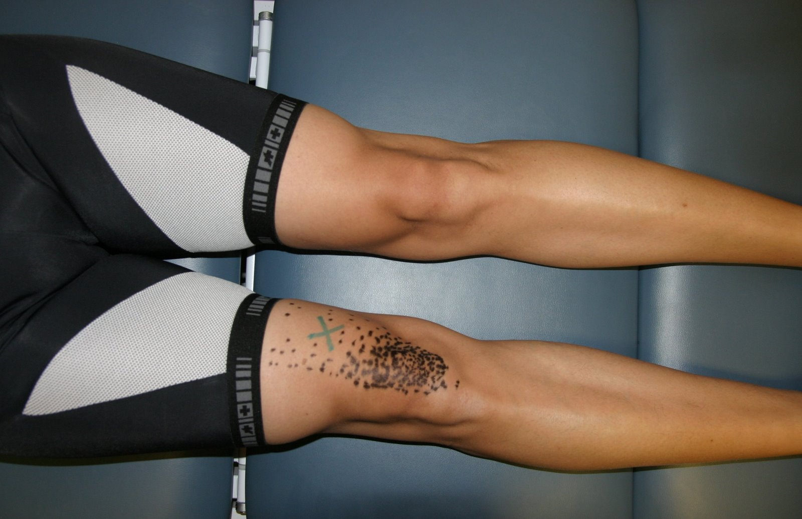 Cycling And Knee Pain Recoverydoc